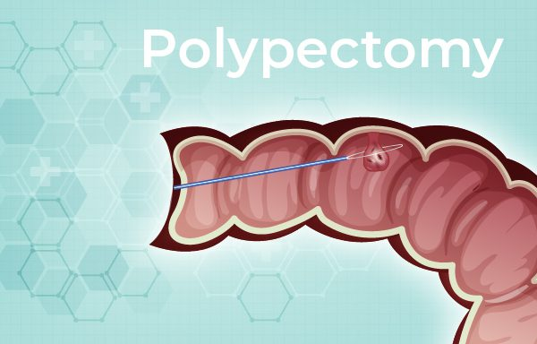 Polypectomy