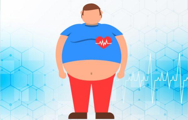Obesity Management